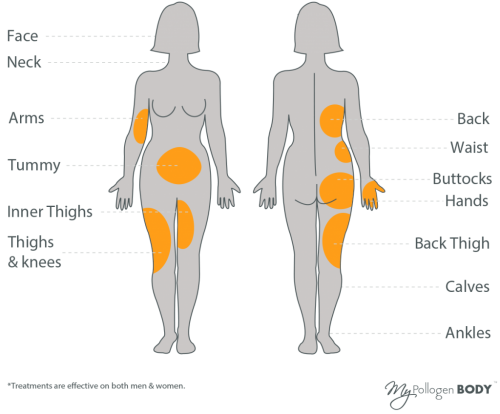 LipofirmPro-treatment-areas